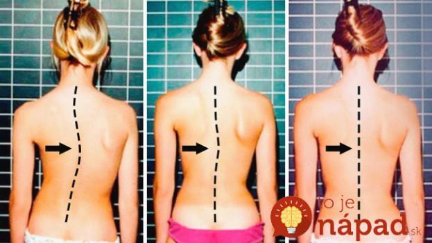 Bolí vás chrbtica? Týchto 6 jednoduchých cvikov dokáže zázraky!