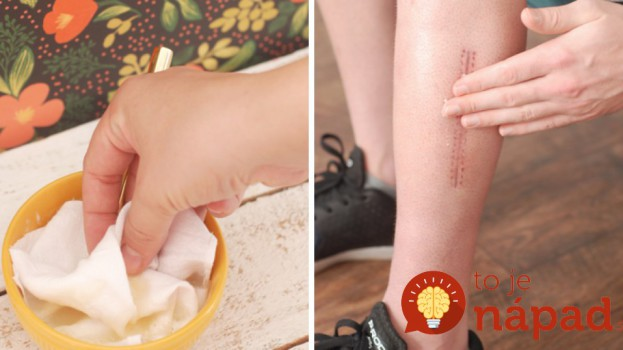 Jazvy po akné, úraze či operácii? Prírodný recept, ako urýchliť ich hojenie!