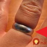 Nemôžete z prstu dostať prsteň? Pomôže trik, ktorý používajú aj lekári!