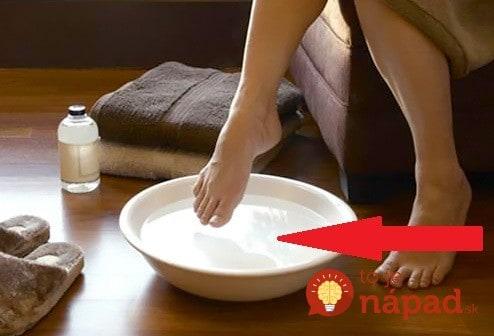 Pleseň na chodidlách? Tento domáci recept pomôže už o 20 minút!