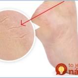Lacný domáci trik na popraskané a tvrdé päty: Pomôže aj s extrémne stvrdnutou pokožkou!