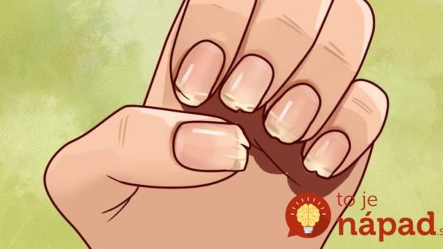 Vaše nechty sa neustále lámu napriek tomu, že beriete vitamíny? Pozrite sa lepšie, toto vám chce povedať vaše telo!
