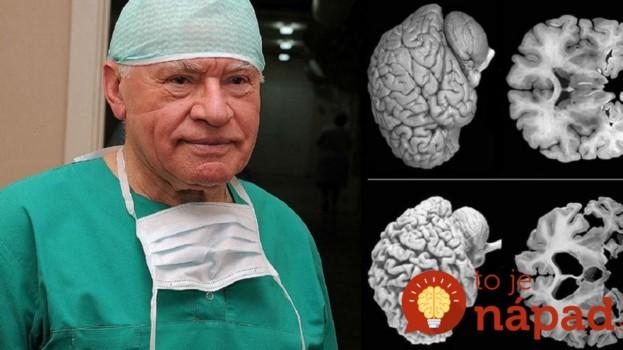 Neurochirurgovia bijú na poplach: Každá žena by mala poznať tento dôležitý fakt