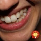 Ako odstrániť stvrdnutý zubný povlak za 2 minúty?