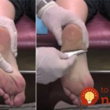 Prestížny lekár ukázal jednoduchú metódu, ako sa zbaviť bolesti chodidiel raz a navždy. Nemusíte nikam chodiť!