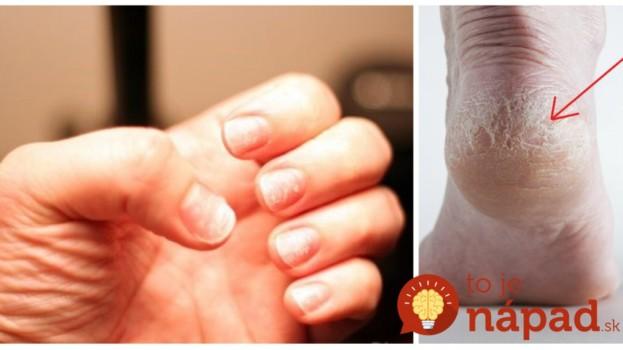 Zaberá za 1 noc: Neuveriteľne jednoduchý trik starej mamy na popraskané päty a lámavé nechty!