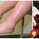 Zbohom opuchnuté nohy a kilá navyše: 9 potravín, ktoré zbavia vaše telo zadržanej vody!