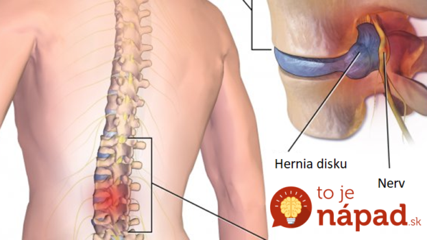 Chirurg ukázal najjednoduchší spôsob, ako pomôcť chrbtici – a zabralo to: Keby to vedel každý, bolo by oveľa menej operácií!