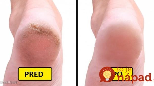 Táto domáca zmes opravila stvrdnutú kožu na nohách lepšie ako pemza: Odporúčam každému, kto pozná tento problém!