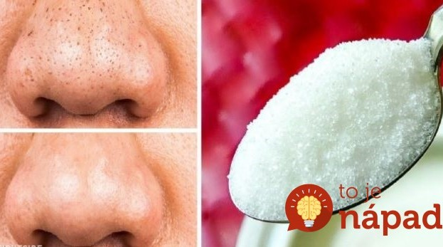 Kozmetička poradila, ako používať obyčajný cukor spôsobom, o akom sa nám nesnívalo: Tvár skrásnie aj v 60-tke!