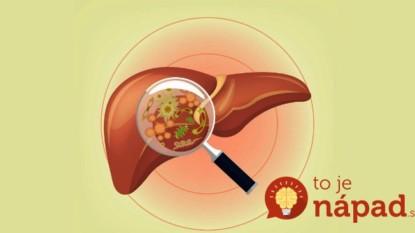 10 potravín, ktoré vám dajú do poriadku pečeň! Oplatí sa zaradiť ich do svojho jedálnička.