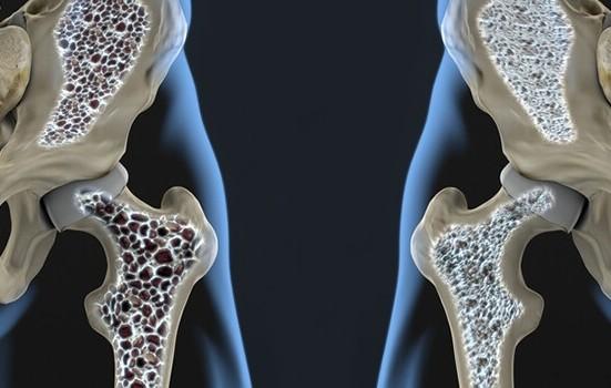 7 vecí ktoré posilnia vaše kosti: Osteoporóza nemá šancu!